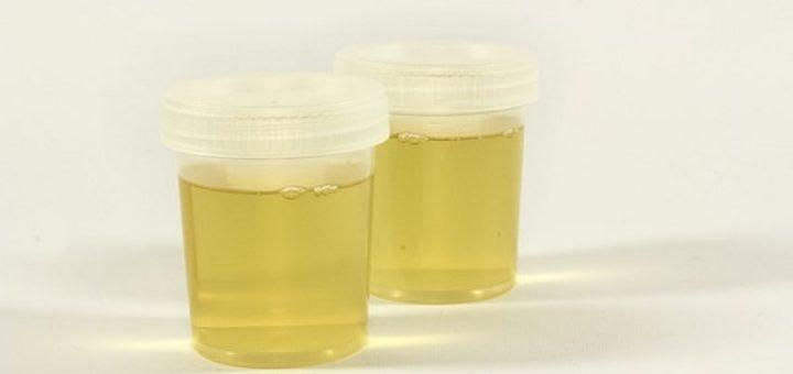 Warum ist Urin gelb?